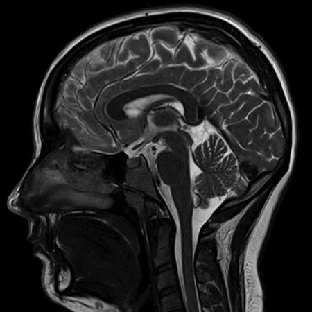 Мрт головного мозга в сагиттальной