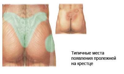 Пролежни — последствия перелома позвоночника, компрессионный перелом позвоночника, лечение компрессионного перелома, перелом позвоночника