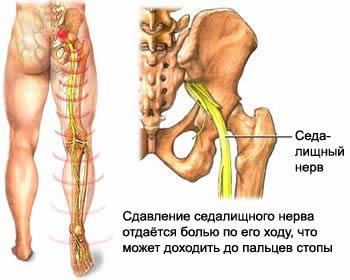 От шейного остеохондроза немеют ноги